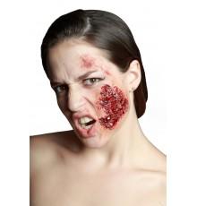 Fausse joue infectée
